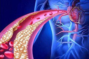 kolesterol tedavi