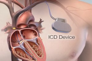 Takılabilir defibrilatörler