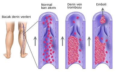 Derin ven trombozunun en korkulan komplikasyonu pıhtı embolisidir.