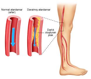 Bacak atardamarında damar sertliği (ateroskleroz) gelişmesi