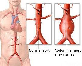 Abdominal aort anevrizması, aort damarının karın kısmında anormal genişlemesidir.