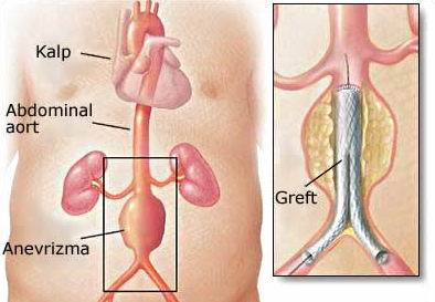 Abdominal Aort Anevrizması Tedavisi