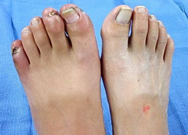 Buerger hastalığına bağlı ayak parmaklarında tipik bulgular: Sol ayak başparmağı, 2. ve 5. parmaklarda kan azlığına bağlı tırnak şekil bozuklukları, iyileşmeyen yaralar (ülserler). Aynı zamanda bu parmaklarda şiddetli ağrı da vardır.