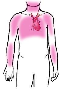 Kalbe bağlı göğüs ağrısının (angina) hissedildiği vücut bölgeleri
