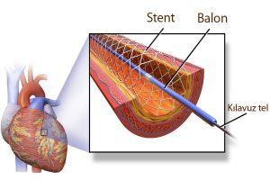 stent nedir nasıl