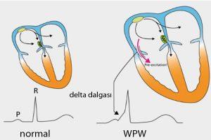 Wolff Parkinson White (WPW) Sendromu Nedir?