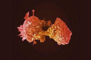 kanser yaşam ölüm