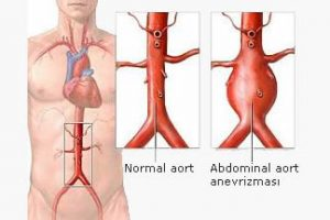 Aortun Anatomisi, Abdominal Aort Anevrizması Nedir? Abdominal Aort Anevrizmasında Nedenler, Şikayetler ve Tanı Abdominal Aort Anevrizmasında Tedavi