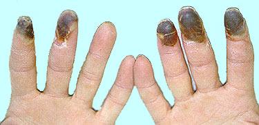 Buerger hastalığında el parmak uçlarında gangren gelişmesi